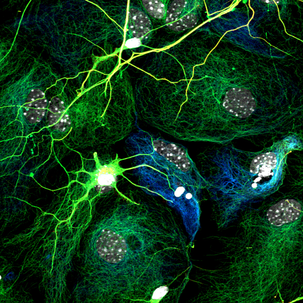 Neurons And Glia Connectome How The Brain S Wiring